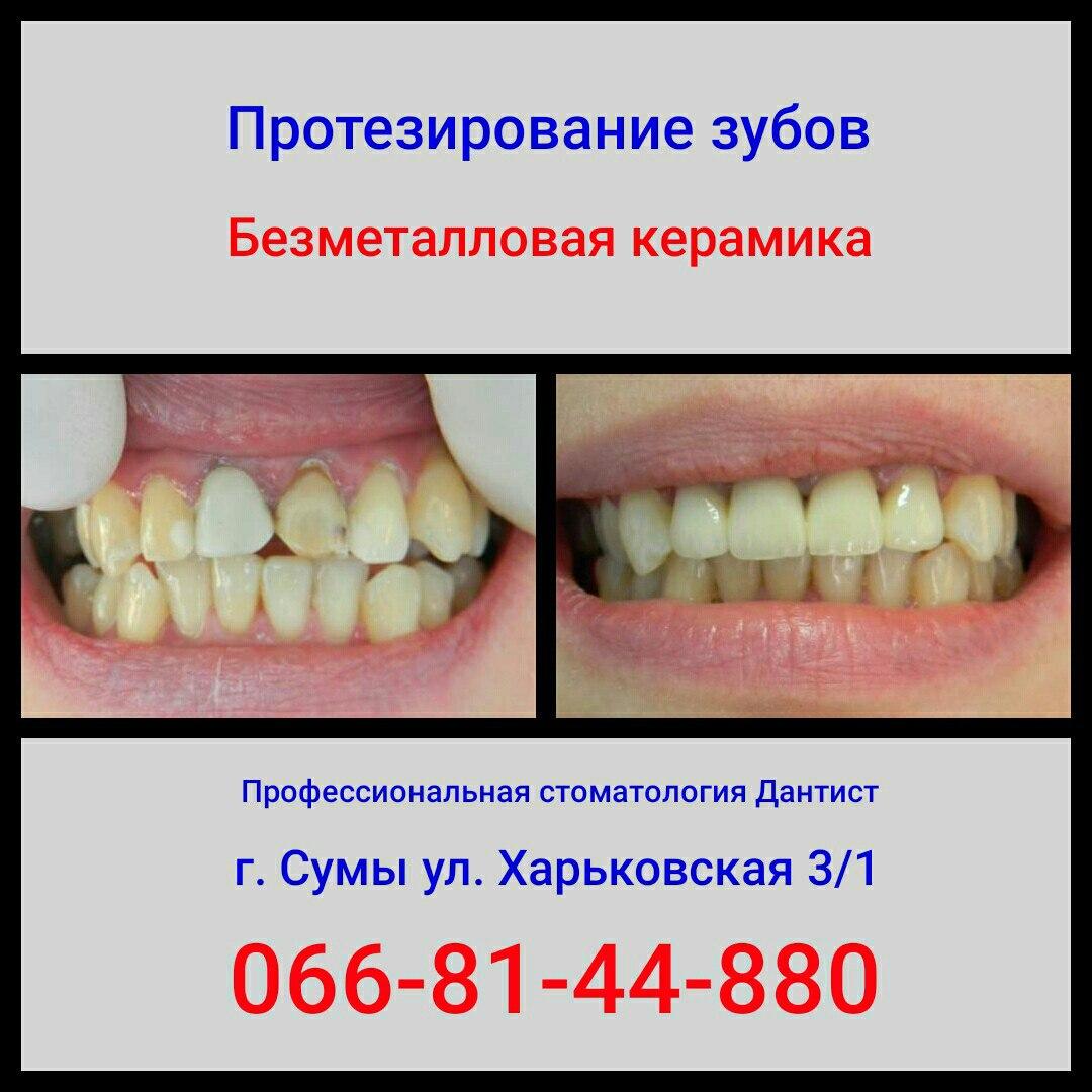 Вылечить зубы по полису