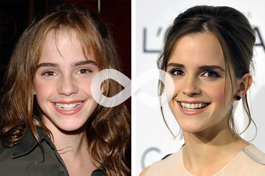 красивые вставные зубы