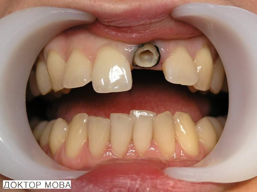 Что делать, если сломался зуб? Переломы корня и коронки