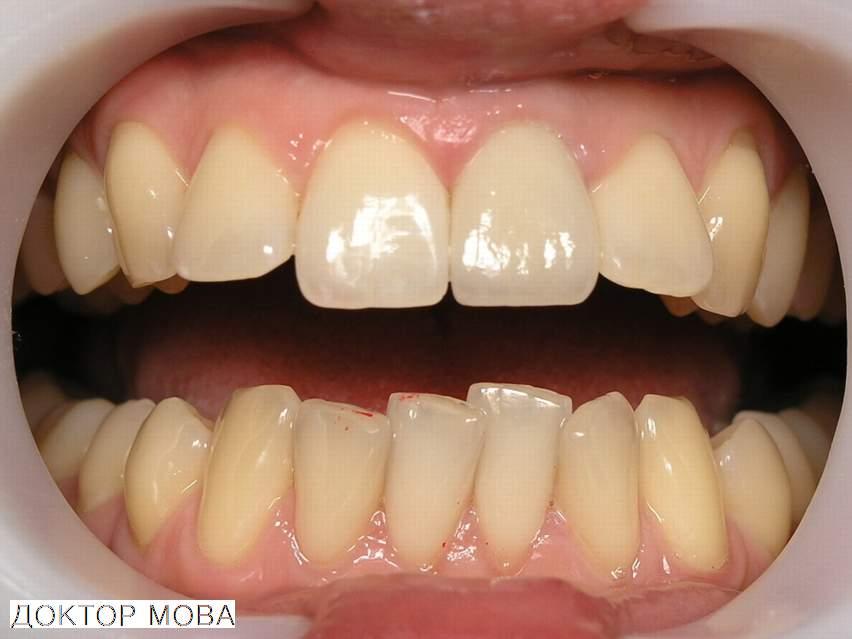 виниры на сломанный зуб